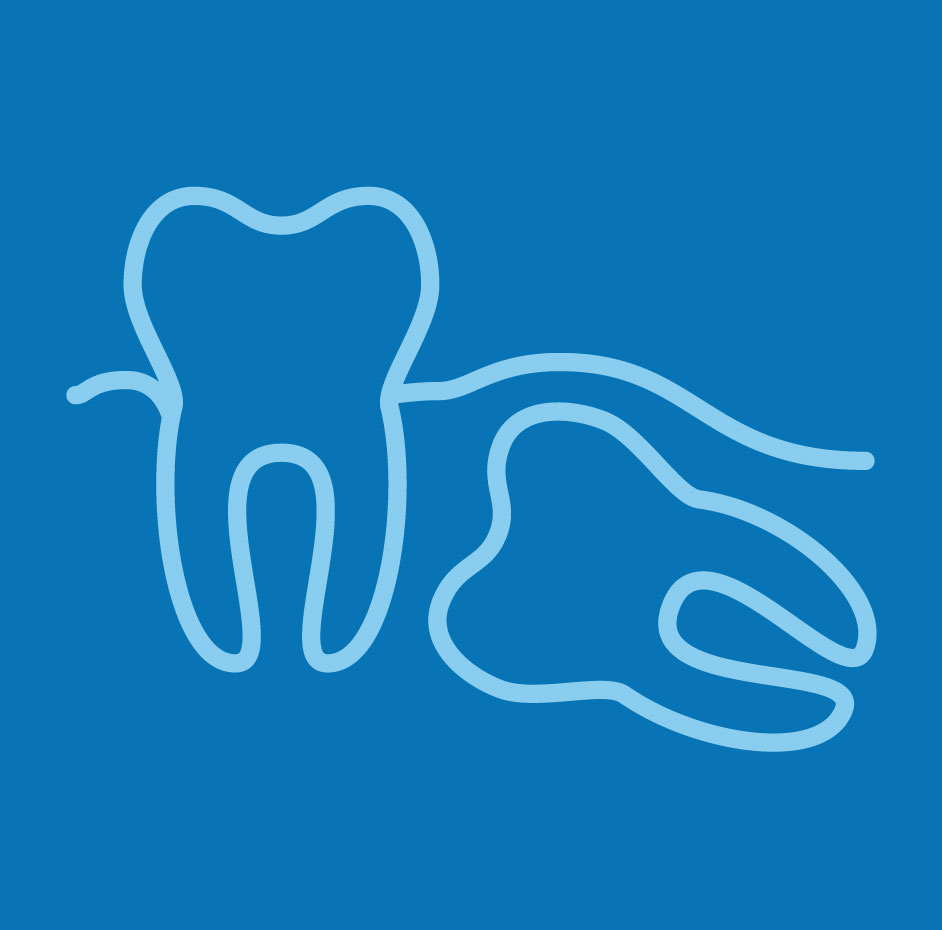 Blue impacted wisdom tooth image from  in Rancho Palos Verdes, CA