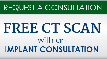 Free CT Scan with an Implant Consultation